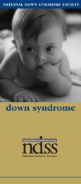 About Down Syndrome