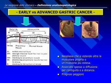 Il cancro dello stomaco
