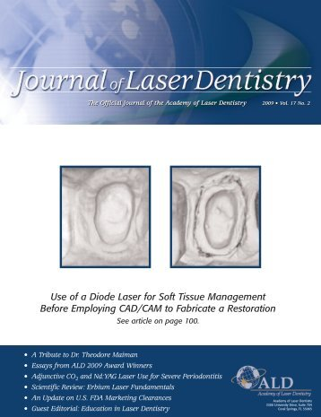Use of a Diode Laser for Soft Tissue ... - Academy of Laser Dentistry