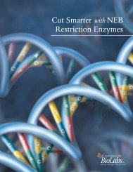 Cut Smarter with NEB Restriction Enzymes - Lab-JOT