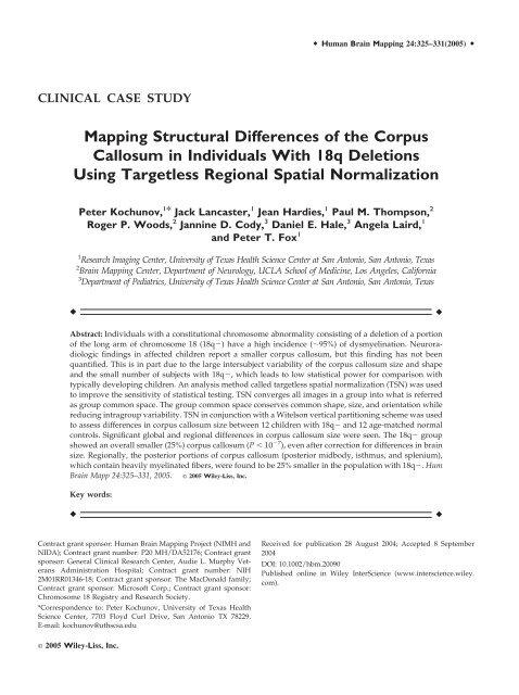 agenesia corpus callosum tx