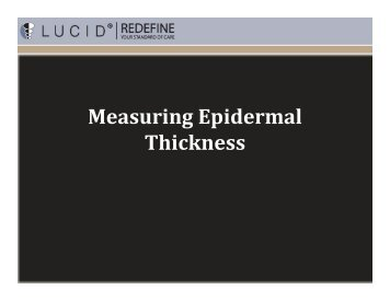 Measuring Epidermal Thickness