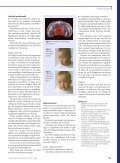 Orofaciala problem vid Downs syndrom - Page 2