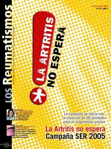 Entrevista Dra. Loreto Carmona Ortells - Sociedad Española de ...