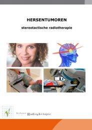 Stereotactische bestraling hersenen (pdf) - Instituut Verbeeten