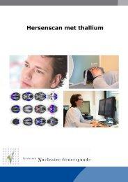 Hersenscan met Thallium - Instituut Verbeeten
