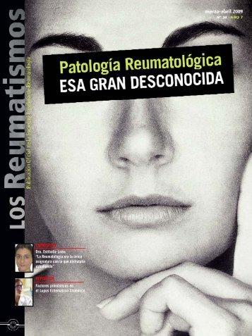 ENTREVISTA Dra. Estíbaliz Loza - Sociedad Española de ...