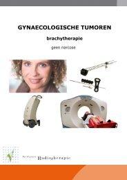 Inwendige bestraling met anesthesie (pdf) - Instituut Verbeeten