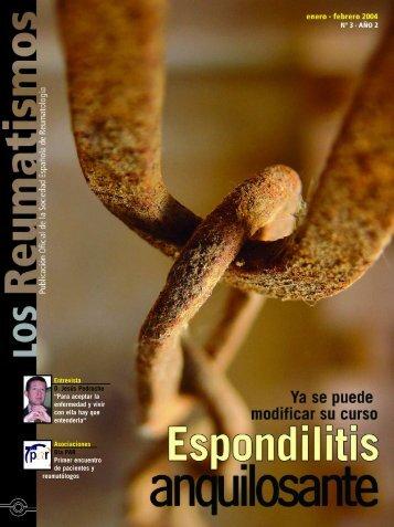 Entrevista D. Jesús Pedroche - Sociedad Española de Reumatología