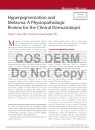 Hyperpigmentation and Melasma: A Physiopathologic Review for ...