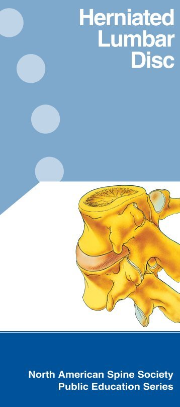Herniated Lumbar Disc - KnowYourBack.org