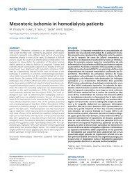 Mesenteric ischemia in hemodialysis patients - Revista Nefrologia