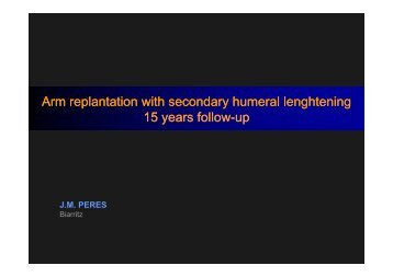 Arm replantation with secondary humeral lenghtening ... - e-plastic.fr