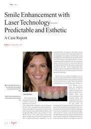 Smile Enhancement with Laser Technology ... - Flax Dental