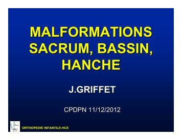 Malformations sacrum, bassin, hanche - CHU Grenoble