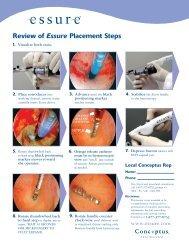 Essure-Placement-Steps - Urogyn.org