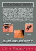 Die Vorbeugung von Hauttumoren - Seite 2