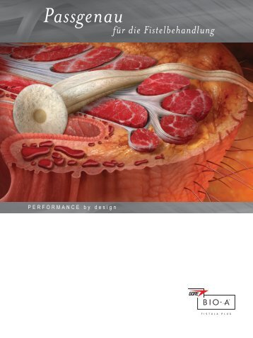 Passgenau - Gore Medical