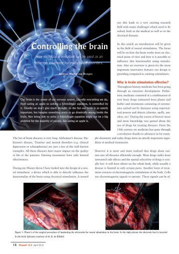 Controlling the brain - Electronics Research Laboratory