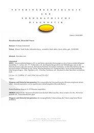 HCM-PKD Befund - Sibiland
