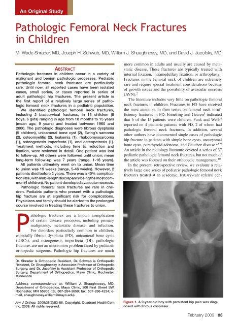 Pathologic Femoral Neck Fractures in Children - Cutis