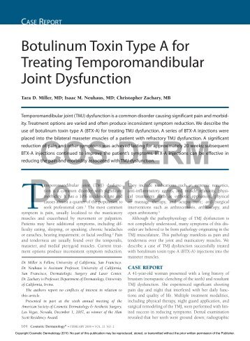 Botulinum Toxin Type A for Treating Temporomandibular Joint ...