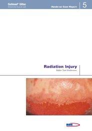 Radiation Injury - Cutimed