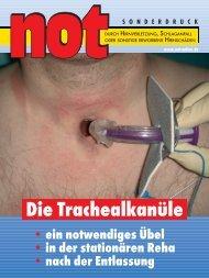 Trachealkanüle - Therapiezentrum Burgau