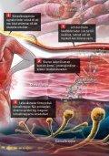 Diclofenac T ratiopharm. Vid behandling av ... - teva nordic sweden - Page 6