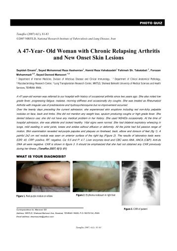 A 47-Year- Old Woman with Chronic Relapsing Arthritis ... - Tanaffos
