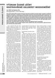 význam časné léčby roztroušené sklerózy mozkomíšní - Solen