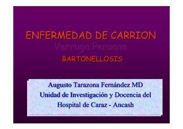 ENFERMEDAD DE CARRION Verruga Peruana