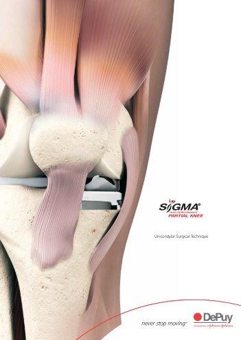 Psi zimmer unicompartmental high flex knee surgical technique uni condylar knee surgical technique yorkshire joint publicscrutiny Image collections