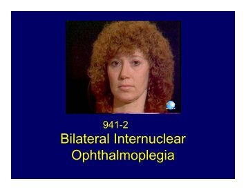 Bilateral Internuclear Ophthalmoplegia
