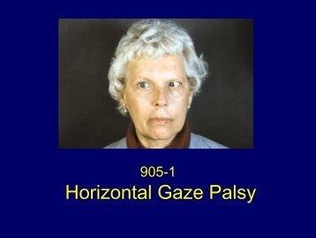 Horizontal Gaze Palsy