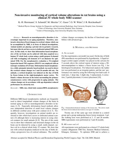 Non-invasive monitoring of cortical volume alterations in rat brains ...