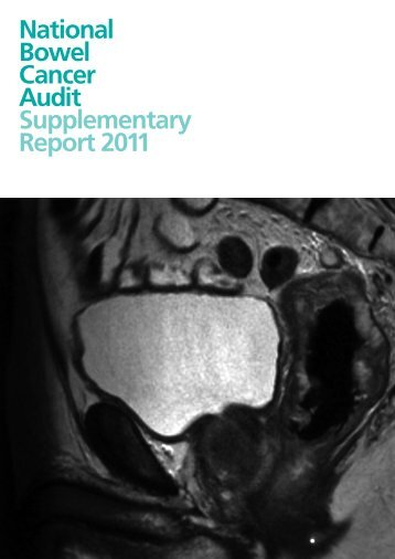 National Bowel Cancer Audit Supplementary Report 2011 - HQIP
