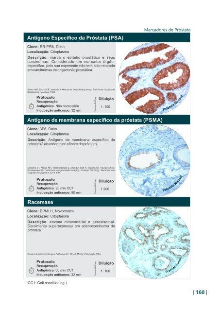 antígeno de membrana específico de próstatas