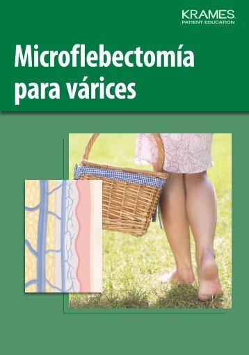 Microflebectomía para várices - Veterans Health Library