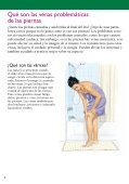 Microflebectomía para várices - Veterans Health Library - Page 2