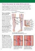 Microflebectomía para várices - Veterans Health Library - Page 4