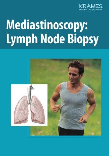 Mediastinoscopy: Lymph Node Biopsy - Veterans Health Library