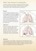 Mediastinoscopy: Lymph Node Biopsy - Veterans Health Library - Page 5