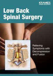 Low Back Spinal Surgery - Veterans Health Library