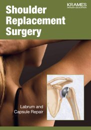 Shoulder Replacement Surgery - Veterans Health Library