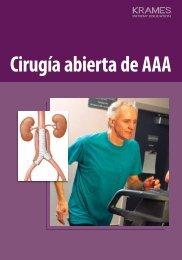 Cirugía abierta de AAA - Veterans Health Library