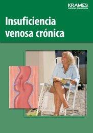 Insuficiencia venosa crónica - Veterans Health Library