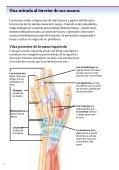 Cirugía de la mano para tratar bultos - Veterans Health Library - Page 4