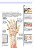 Cirugía de la mano para tratar bultos - Veterans Health Library - Page 5