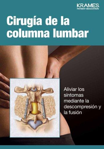 Cirugía de la columna lumbar - Veterans Health Library
